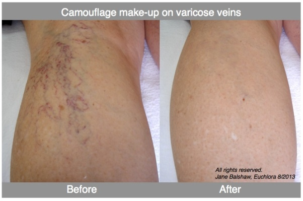 BeforenAfter varicose veins